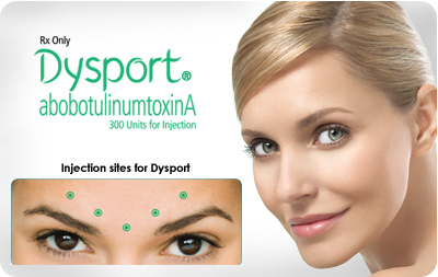 dysport-botox-alternative